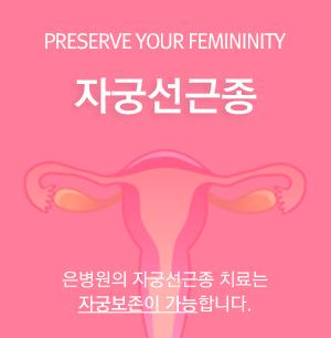 자궁선근종